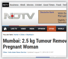 NDTV - Huge Ovarian Tumour in a Pregnancy Excised during Emergency Caesarean Section